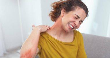 صورة قبل فصل الشتاء ..4 نصائح طبية لمنع الإكزيما وحماية الجلد من الالتهاب